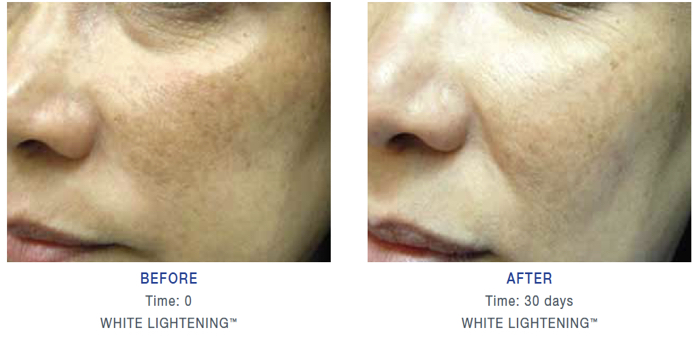 Brite White 30 Days Clinical Trial 30 Days Result